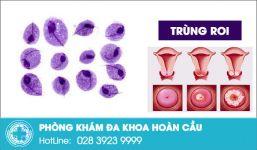 Bệnh trùng roi dễ lây lan khó điều trị