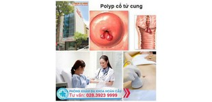 Điều trị polyp cổ tử cung như thế nào