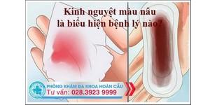 Kinh nguyệt màu nâu -  biểu hiện bệnh lý nguy hiểm ở nữ giới