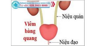 Phương pháp điều trị viêm bàng quang ở nữ giới tại Đa Khoa Hoàn Cầu