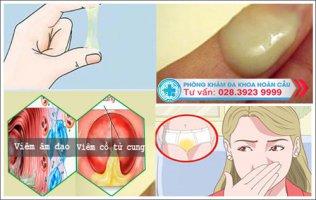 Cách điều trị bệnh huyết trắng hiệu quả