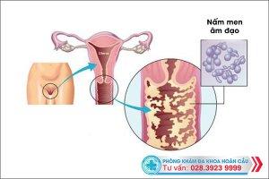 Hé lộ nguyên nhân nhiễm nấm men âm đạo kéo dài và cách trị không lo tái bệnh