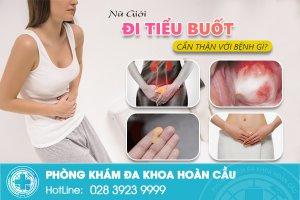 Nữ giới tiểu rắt, tiểu buốt nên cẩn thận với bệnh gì?